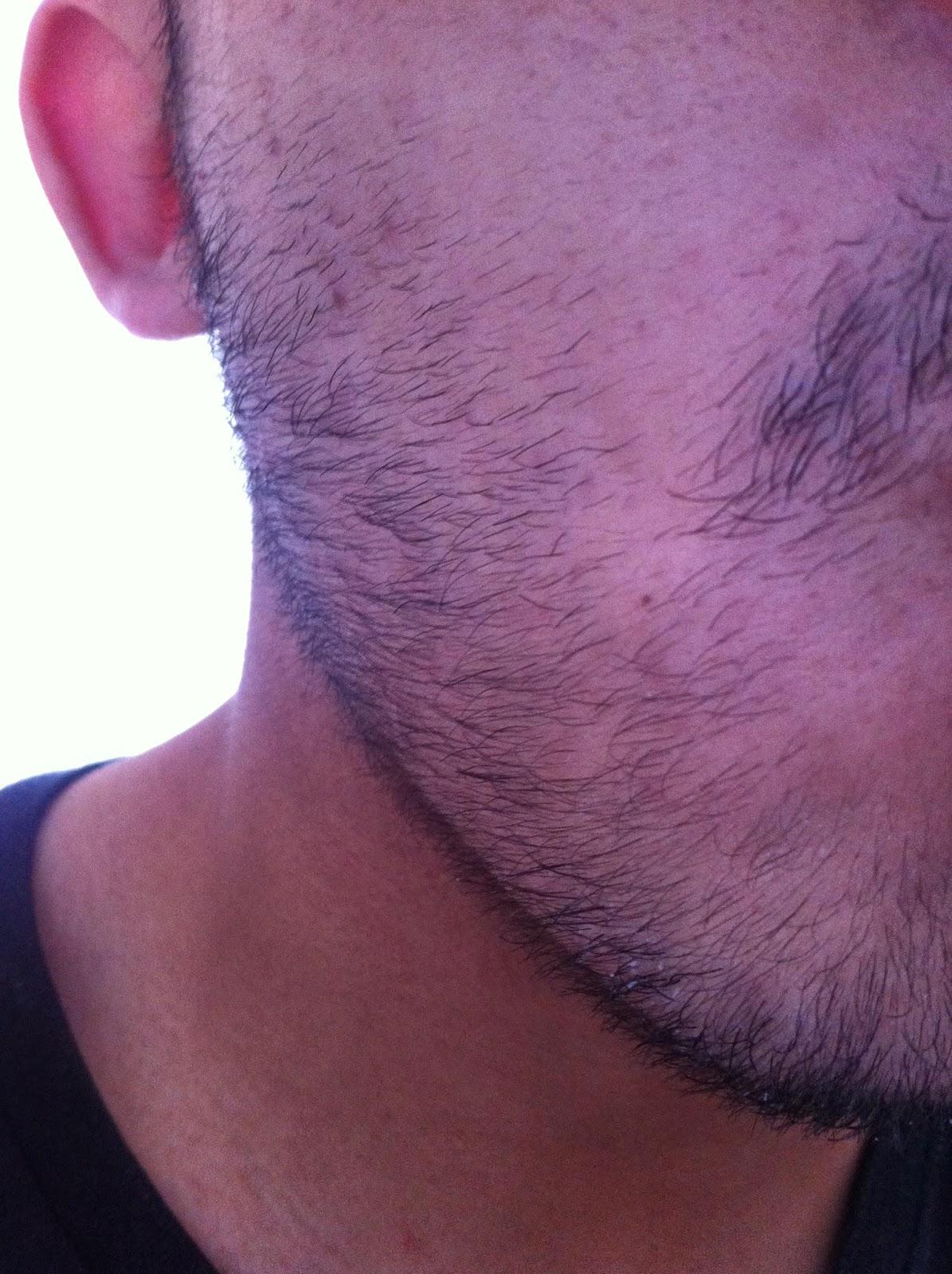 Rogain para hacer crecer mi vello facial