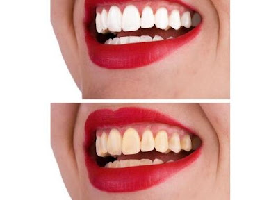 how to improve you smile