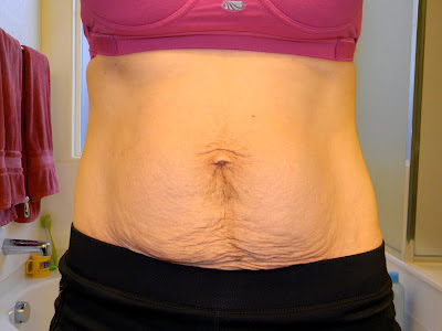 Tummy after birth pictures Liposuction and Tummy Tuck During C-section? Doctor