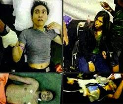 Thumbnail image for (40 Gambar) 5 Orang Mati & 4 Koma Di Konsert Tertutup Yang Tidak Didedahkan Media