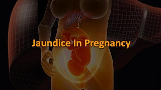 Jaundice, Pregnancy