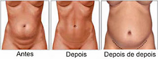 criolipólise funciona, mas a gordura pode voltar
