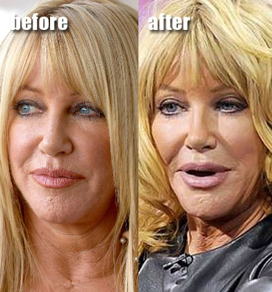 Really awful plastic surgery
