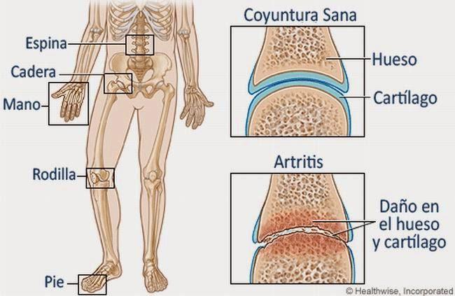 Cómo deshacerse del dolor de las articulaciones, artritis, artrosis y el dolor de espalda  con este remedio naturalel dolor