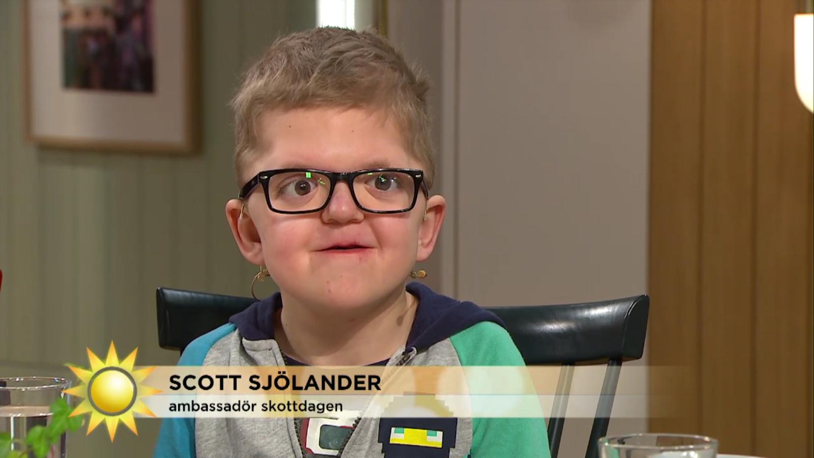 Scott Sjölander blogg om Aperts Syndrom