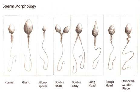sæd normal morfologi