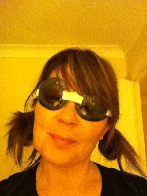 Me with my protective goggles after surgery