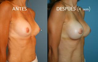 aumento_pecho_mamas_cirujano_plastico_cambio_protesis