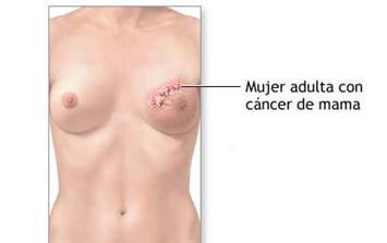QUÉ SIGNIFICA TENER MAMAS DENSAS? - Dr Alexis