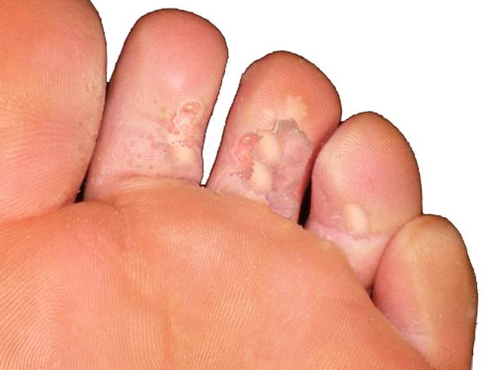 champignons des pieds