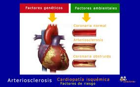 cardipatias isquemicas