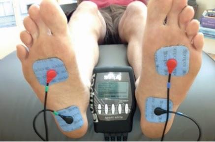 Tratamiento fascitis plantar con electroestimulacion