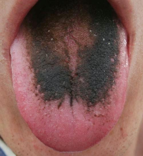 svart hårig tunga