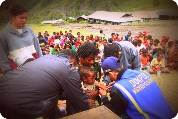 Dinas Kesehatan Tangani Pemulihan Pertusis di Mbua