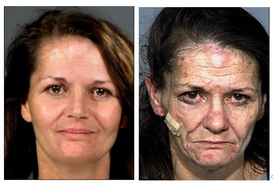 Drug Addicts   Before and AfterPeople Before And After Drugs