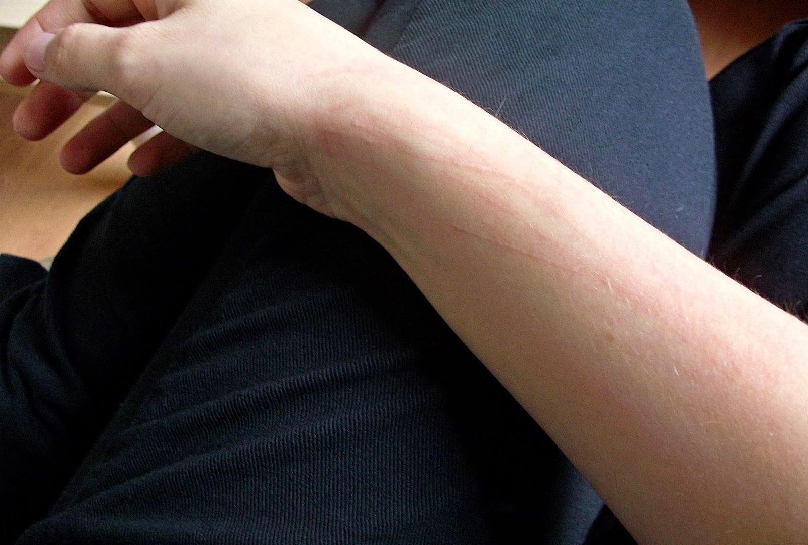 Verrückte Sofas mein leben mit skin picking dermatillomanie meine verrückte haut