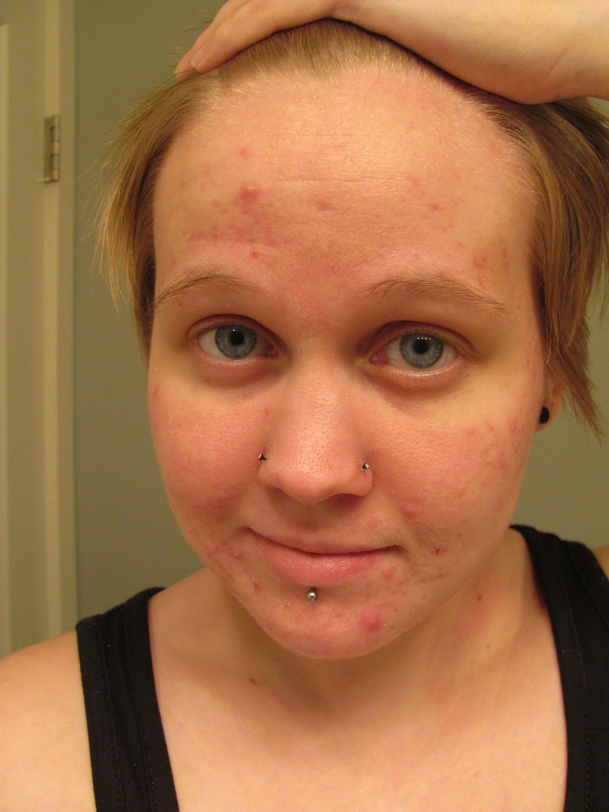 Writings and Rants: The First Month of Accutane In Pictures