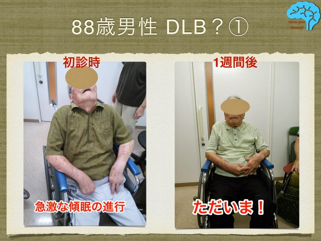 DLB患者。薬剤減量により1週間で復活。