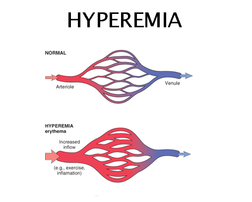 Hyperemia. Mobile App Security Testing Tools. Architectural Project Management Software. Difference Laptop And Notebook. Best Auto Accident Lawyer Medical Record Tech. Las Vegas Mortgage Company Pa Education News. Marketing List Providers Web Design Argentina. Refinancing Closing Costs Lvn Ca Verification. Email Marketing Benefits Apple Training Login