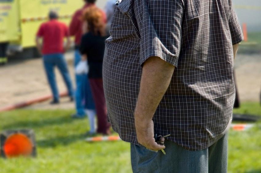Tratamiento de la Obesidad. Relación entre Obesidad y Alzheimer