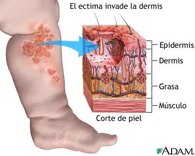 De la forma pustular de la psoriasis de la piel