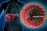 obat herbal hepatitis a