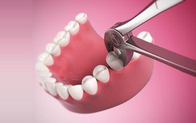 Pencabutan gigi