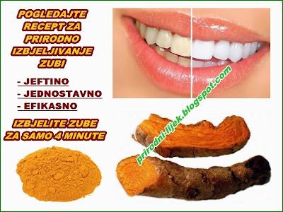 izbjeljivanje zubi