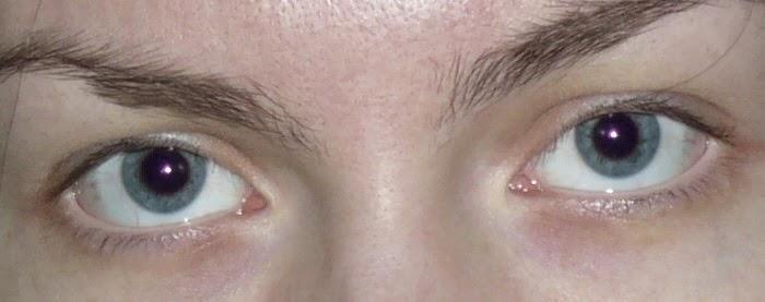 Как избавиться красных глаз на