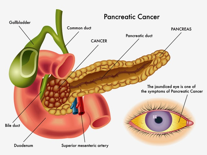 What Causes Pancreatic Cancer
