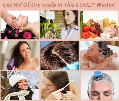 how to stop itchy scalp in winter