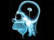 Para que non se te quede así o cerebro...