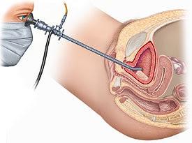 sistoskopi nasıl yapılır? sistoskopi nasıl olur?