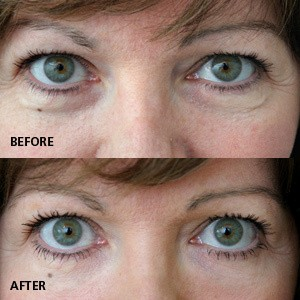 Is it possible to eliminate under eye bags