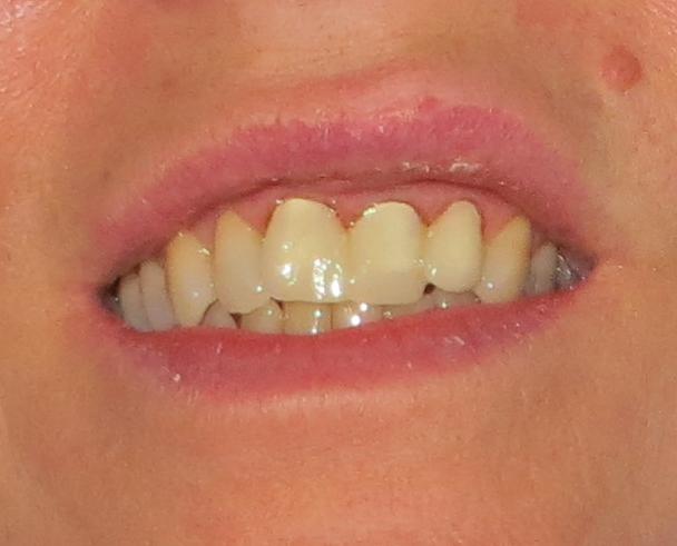 Ripping Teeth September 9th