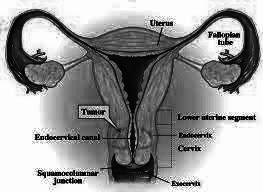 obat penyakit kanker rahim aman tanpa efek samping