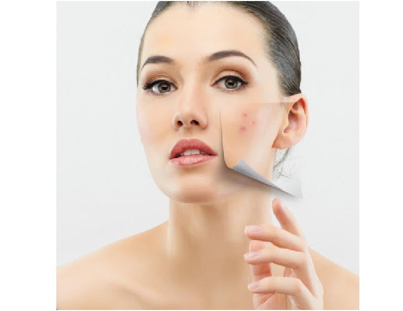 La pigmentación bajo los ojos en la piel
