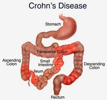 Penyebab dan Gejala Penyakit Crohn
