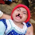 Mengatasi bibir sumbing Info Kesehatan Indonesia