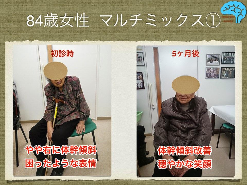 84歳女性 複数の認知症を持つマルチミックス