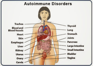 Autoimmunity: Causes, Types, Symptoms, Diagnosis, Treatment And Other Problems