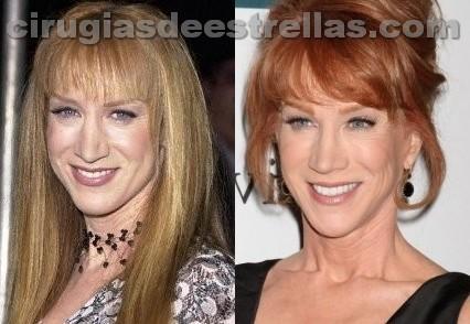 Kathy Griffin antes y después