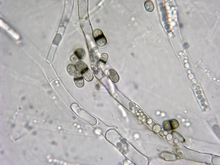 Septate Hyphae With Arthroconidia Broad Septate Hyphae And Two