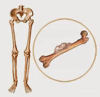 Obat Kanker Tulang Manjur