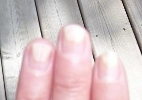 Onycholysis When Nails Detach From The Nail Bed