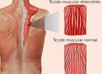 Desgarros de los Músculos