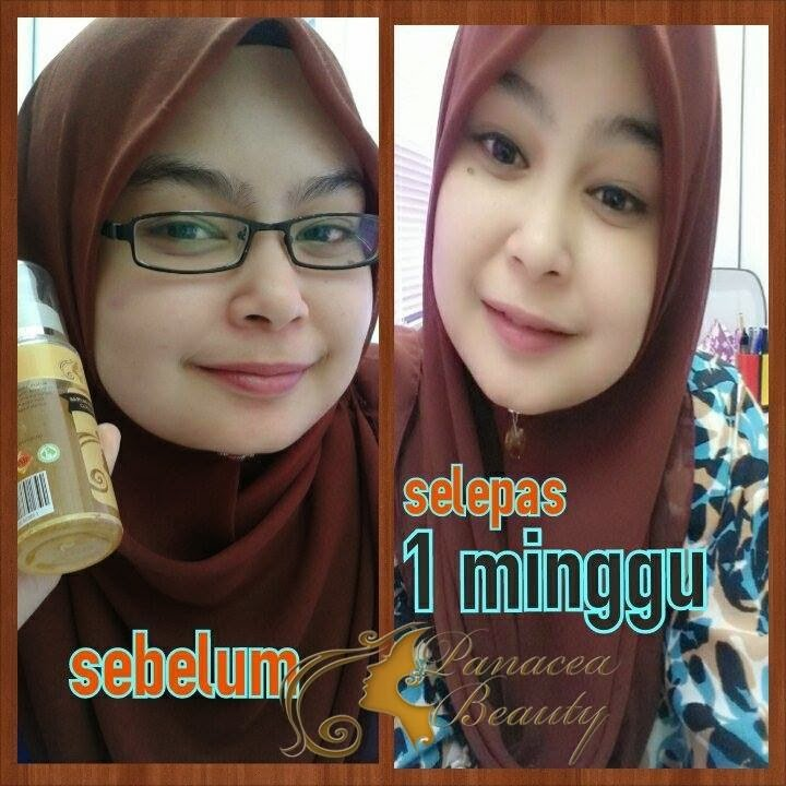 Serum Biowhite Collagen Produk paling laris