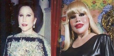 Thai's Khun Sumanee Guna-Kasem Epic Plastic Surgery