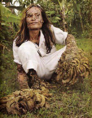 The Tree Man of Java, Human Treeman pictures, Dede Koswara Pictures, Dede Koswara 2012, Dede Koswara after surgery pictures, images of Tree Man, Tree man in Indonesia, Dede Koswara fisherman pics, The Tree Man of Java photo gallary, video of Dede Koswara, current pictures of Dede Koswara, Indonesian Tree Man
