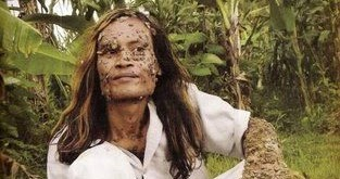 The Tree Man of Java - Human Treeman Dede Koswara Pictures ...